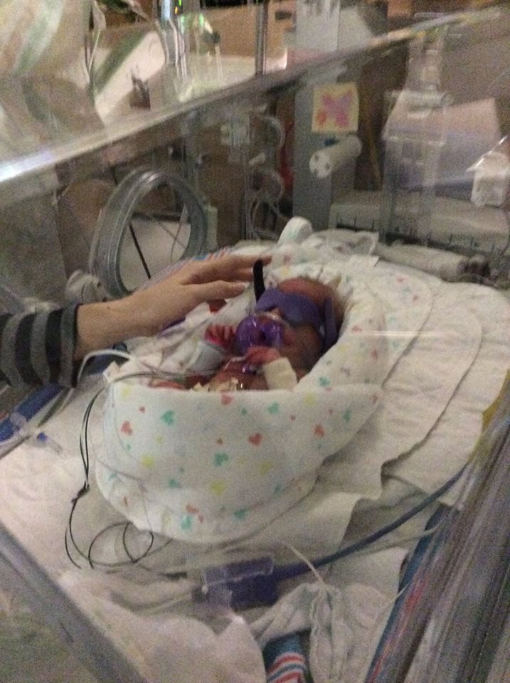 A Hannibal baby gets geared up for UV lights over her incubator to treat jaundice at Barnes-Jewish Hospital.