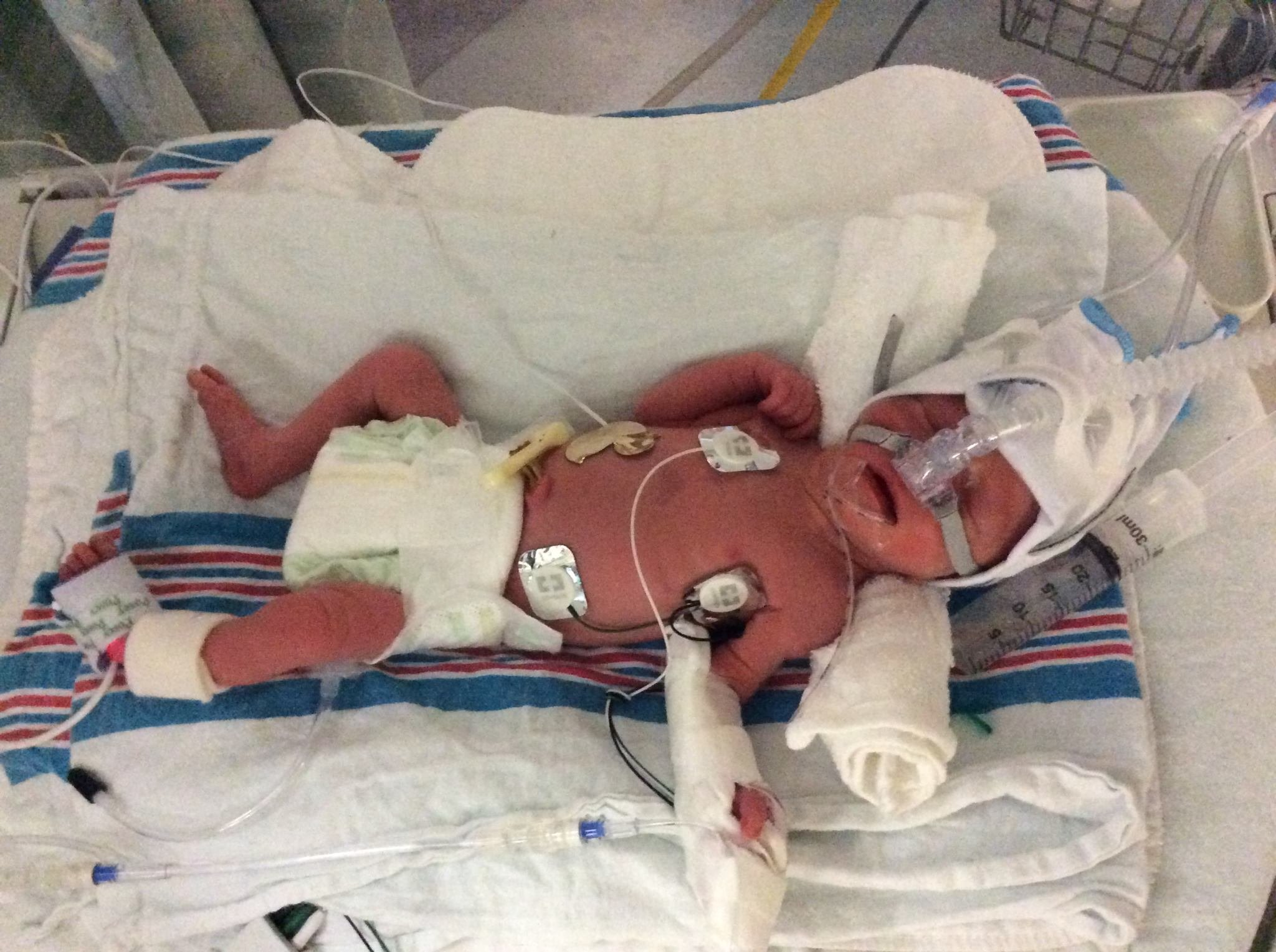 A Hannibal baby born six weeks early receives care in a St. Louis hospital.
